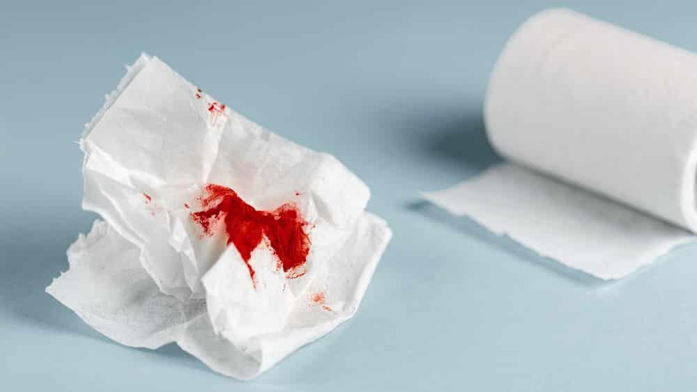 Xuất hiện lượng máu tươi đi kèm phân hoặc xuất hiện trên giấy vệ sinh là dấu hiệu nhận biết điển hình của bệnh trĩ nội độ 1