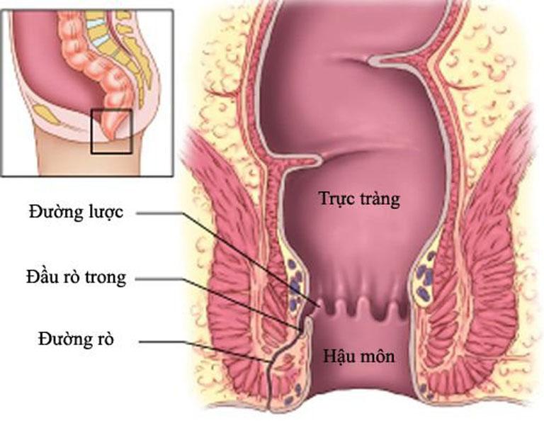 Rò hậu môn là biến chứng nguy hiểm sau mổ trĩ cần được phát hiện và điều trị đúng cách ngay từ sớm