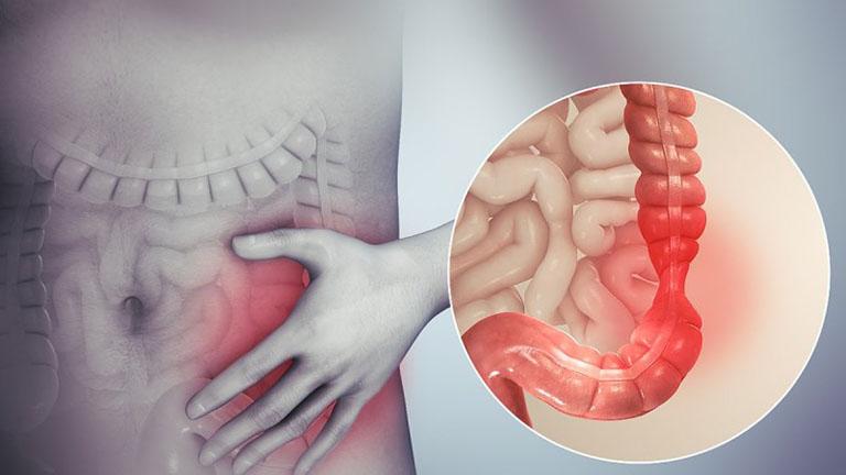 chẩn đoán hội chứng ruột kích thích