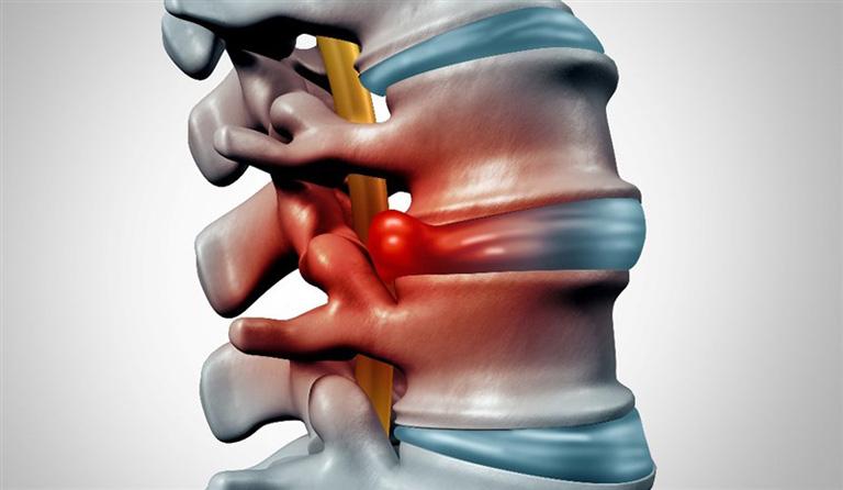 Phồng đĩa đệm là tình trạng đĩa đệm bị tổn thương, sưng phồng và chèn ép lên rễ thần kinh quanh cột sống