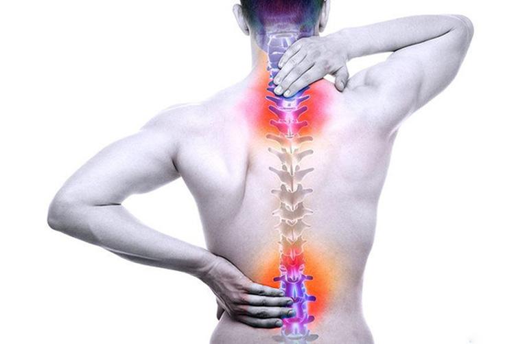 Phồng đĩa đệm gây đau nhức ngay tại vùng cột sống bị tổn thương