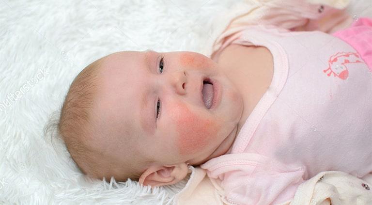 Bé Na có những biểu hiện viêm da cơ địa khi 11 tháng tuổi