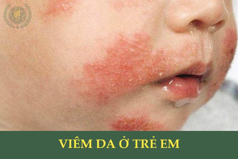 Viêm da ở trẻ em là bệnh thường gặp, cần được điều trị sớm để tránh biến chứng nguy hiểm
