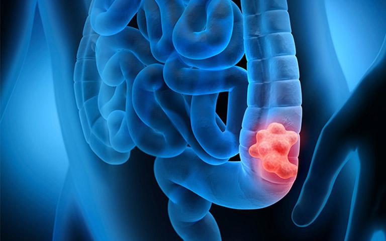 biến chứng của bệnh viêm đại tràng