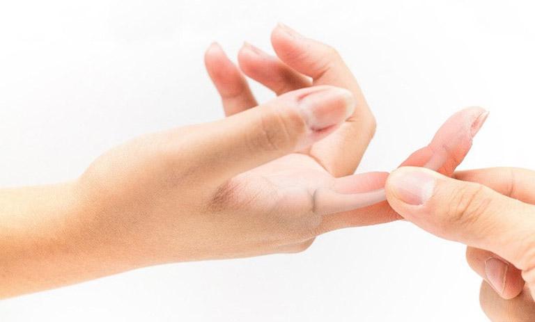 triệu chứng viêm khớp ngón tay
