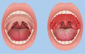 Viêm họng hạt ở lưỡi