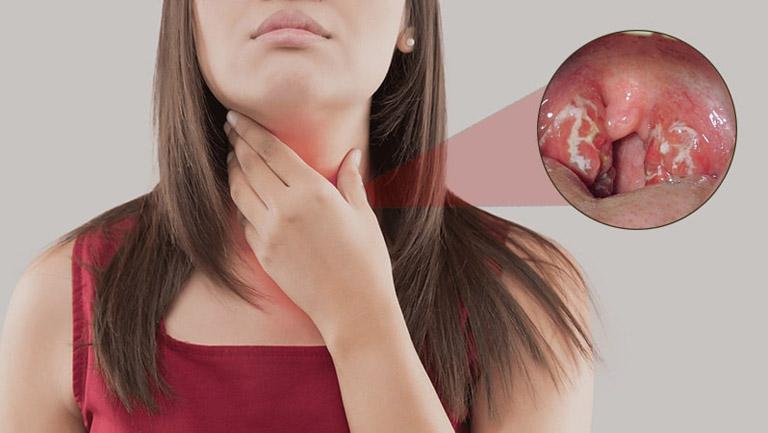 Viêm họng mủ là tình trạng viêm xảy ra tại lớp niêm mạc họng có kèm theo dịch mủ