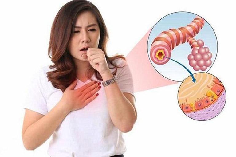 Viêm phế quản cấp là bệnh lý đường hô hấp thường gặp với triệu chứng đặc trưng là ho có đờm, sốt cao