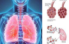 Viêm phổi và viêm phế quản