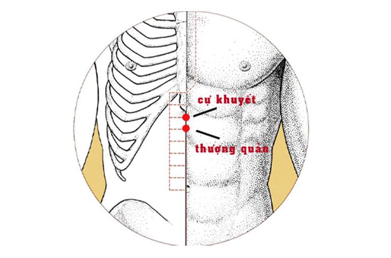 Huyệt Cự khuyết có tác dụng hỗ trợ điều trị tình trạng tiết nhiều dịch vị, lồng ngực nóng ran ợ chua và các vấn đề khác liên quan đến đường ruột