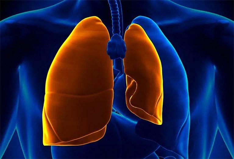 Tràn dịch phổi là một trong những biến chứng nguy hiểm nếu cơn ho kéo dài và không có biện pháp khắc phục phù hợp