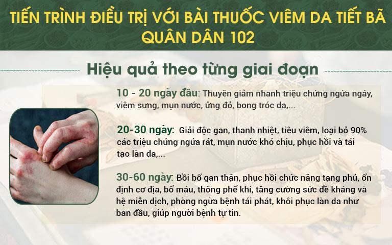 Tiến trình điều trị với bài thuốc viêm da tiết bã Quân dân 102