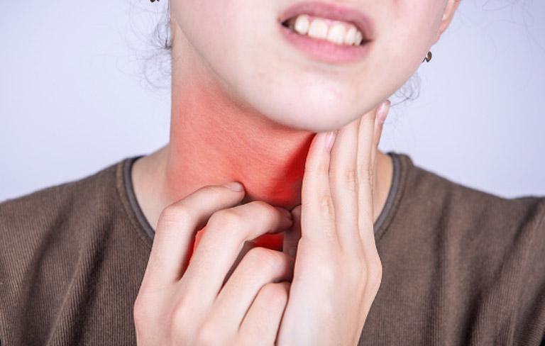 Viêm amidan gây ra các triệu chứng tương tự như viêm amidan thông thường khiến người bệnh cảm thấy rất khó chiu