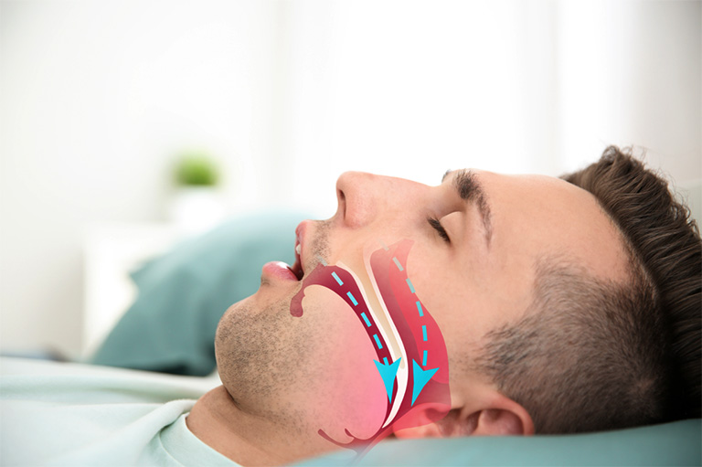 Khối amidan sưng quá to có thể khiến việc vận chuyển không khí bị gián đoạn và gây ra chứng ngưng thở tạm thời khi ngủ