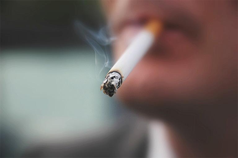 Thói quen hút nhiều thuốc lá kết hợp với tình trạng viêm amidan thông thường có thể tạo điều kiện khởi phát viêm amidan có mủ