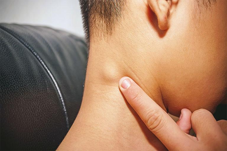 Viêm amidan nổi hạch ở cổ là triệu chứng khá phổ biến hiện nay