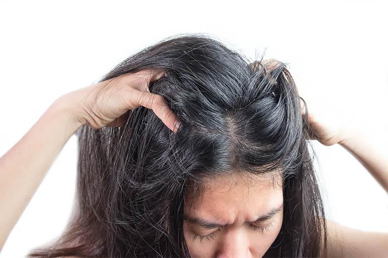 Viêm da tiết bã da đầu ở người lớn có xu hướng tiến triển dai dẳng và dễ tái phát hơn so với trẻ nhỏ