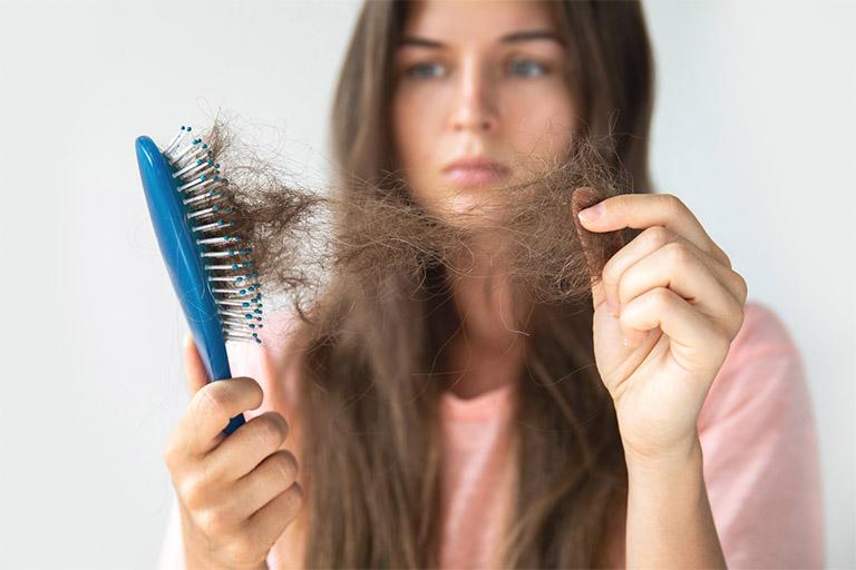 Rụng tóc là biến chứng điển hình của bệnh viêm da tiết bã ở đầu kéo dài, tình trạng này tác động lớn đến giá trị thẩm mỹ