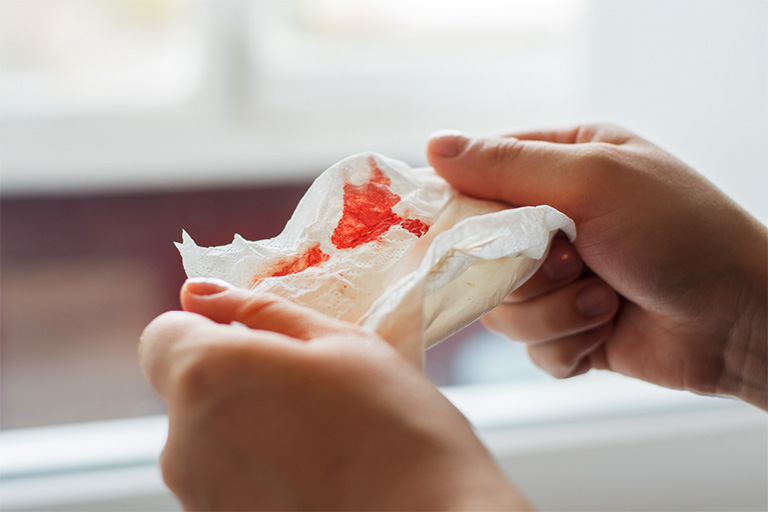 Viêm họng khạc đờm ra máu là dấu hiệu cảnh báo của nhiều bệnh lý nguy hiểm