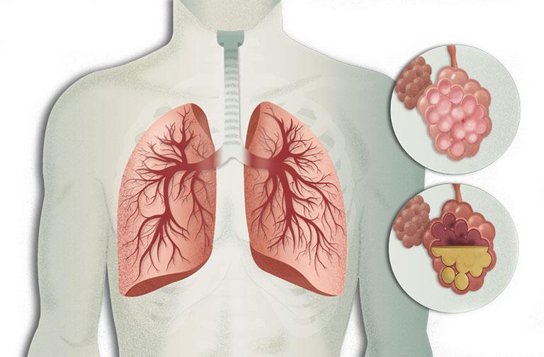 Viêm phổi là căn bệnh gây ra triệu chứng khó thở, thở khò khè và ho khạc đờm có máu