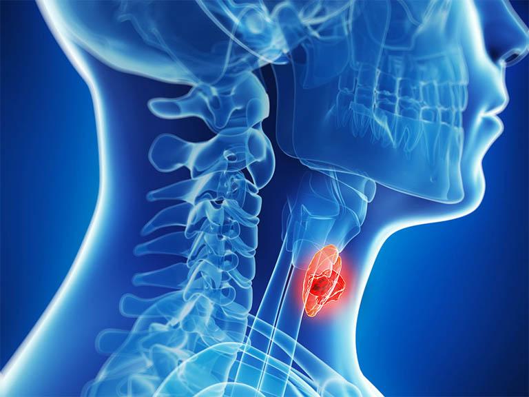 Viêm họng khạc đờm ra máu có thể là dấu hiệu cảnh báo của bệnh ung thư thanh quản
