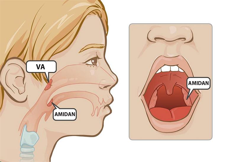 Mặc dù viêm amidan và viêm VA là hai bệnh lý có bản thân gần giống nhau nhưng xét ở diện mức độ nguy hiểm thì bệnh viêm amidan dễ gây biến chứng hơn