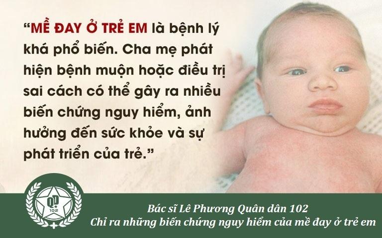 Mề đay ở trẻ em ảnh hưởng lớn tới sức khỏe, sự phát triển bình thường của bé