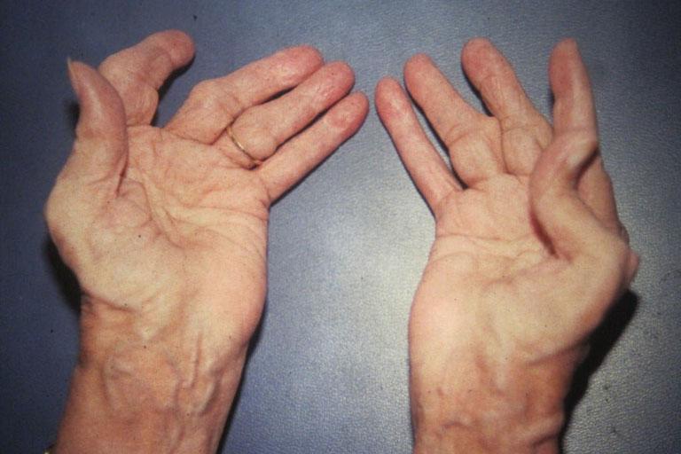 Biến dạng khớp gây tàn phế là một trong những biến chứng của bệnh viêm đa khớp