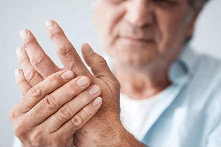 Hình thành hạt dưới da là triệu chứng xảy ra ở những bệnh nhân bị viêm khớp dạng thấp mức độ nặng