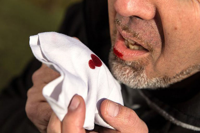 Ho đờm ra máu là dấu hiệu của nhiều bệnh lý nguy hiểm có thể đe dọa đến tính mạng