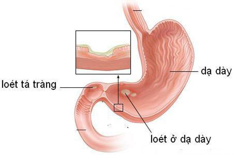 Viêm loét dạ dày tá tràng cũng là bệnh lý làm gia tăng nguy cơ khởi phát viêm hang vị do trào ngược dịch mật