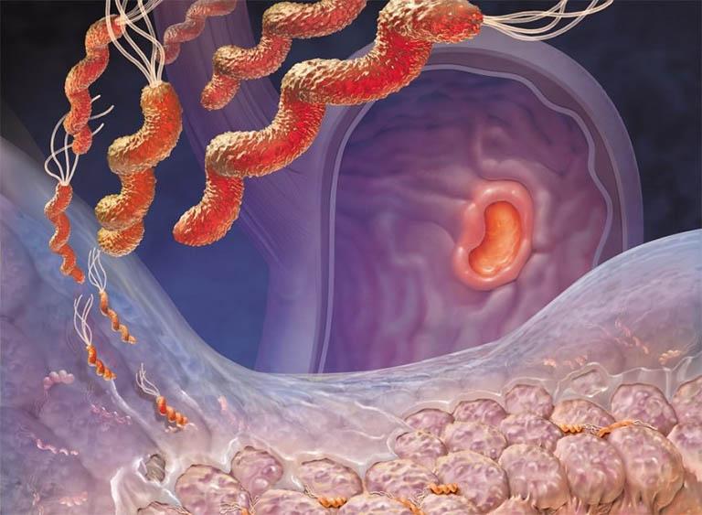 Vi khuẩn HP là nguyên nhân hàng đầu gây viêm loét dạ dày tá tràng và một số bệnh dạ dày khác