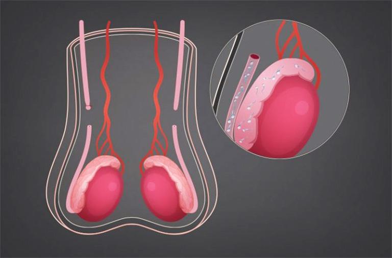 Triệt sản nam là thủ thuật cắt đứt đường thông giao giữa tinh hoàn và thế giới bên ngoài nhằm nhốt lại tinh trùng ở bên trong