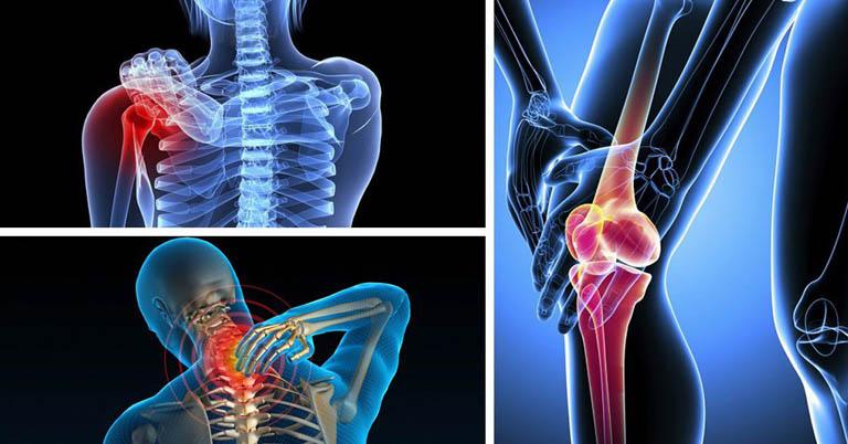 Viêm đa khớp là bệnh lý gây viêm đau tại nhiều khớp trên cơ thể trong cùng một thời điểm nhất định