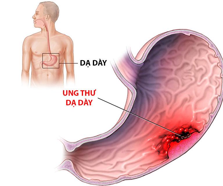 Ung thư dạ dày là biến chứng nguy hiểm của bệnh viêm loét dạ dày tá tràng nếu không sớm phát hiện và có phương pháp điều trị phù hợp