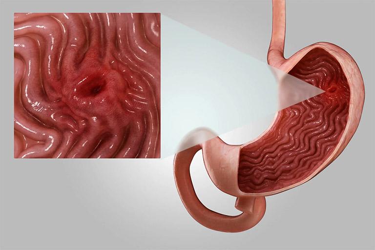 Viêm loét dạ dày tá tràng là tình trạng viêm nhiễm và gây tổn thương ở tấm lót niêm mạc dạ dày do vi khuẩn HP hoặc chế độ ăn uống kém khoa học gây ra