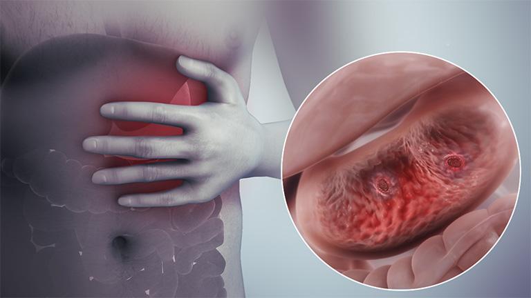 Tìm câu trả lời cho thắc mắc viêm loét dạ dày có chữa khỏi được không