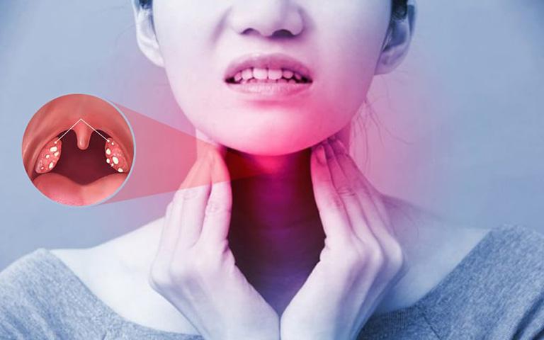 triệu chứng Viêm mũi họng cấp