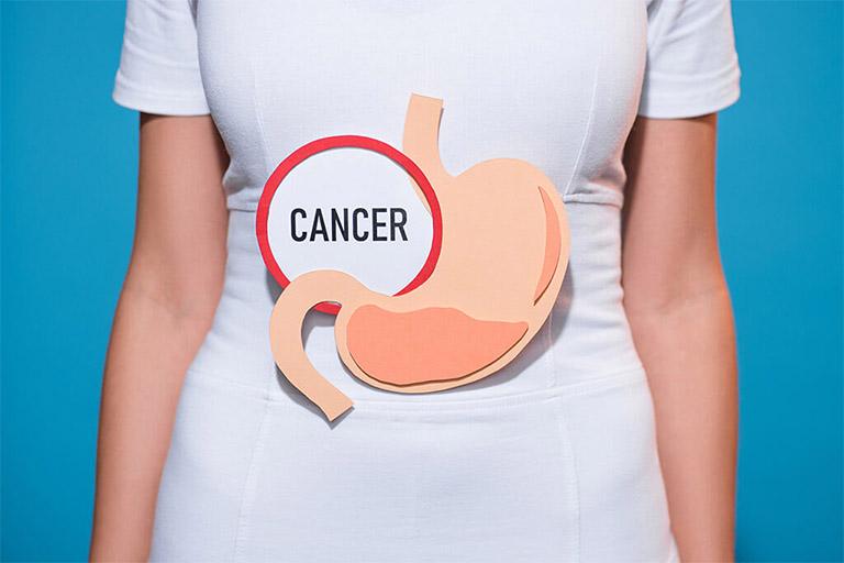 Ung thư dạ dày là một trong những biến chứng rất nguy hiểm của bệnh xuất huyết dạ dày