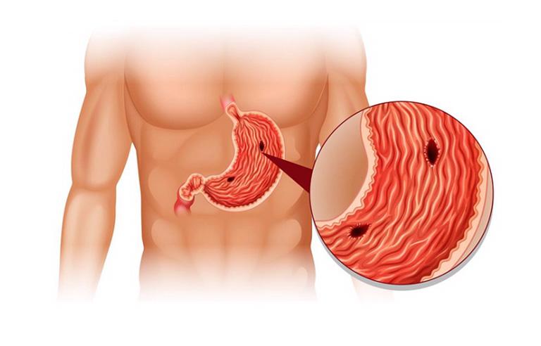 Thói quen lạm dụng rượu bia và chất kích thích ở bệnh nhân bị xuất huyết dạ dày có thể dẫn đến hiện tượng thủng dạ dày