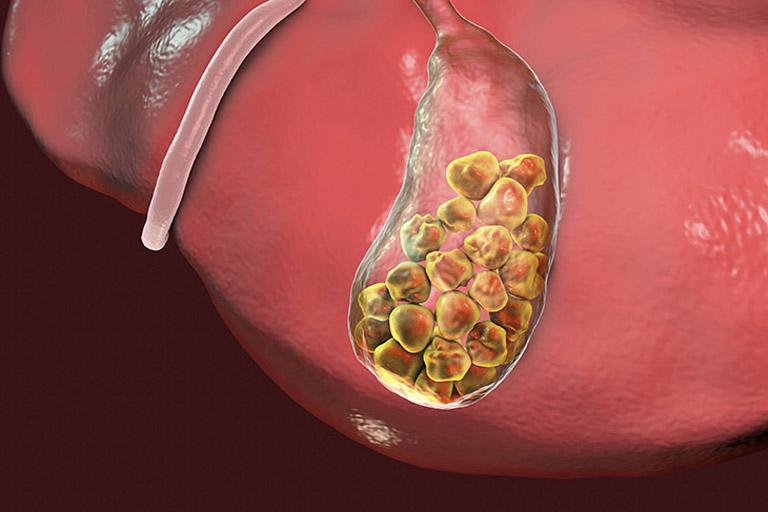 Thành phần dược tính trong rau ngổ có tác dụng làm thu nhỏ kích thước viên sỏi bên trong túi mật
