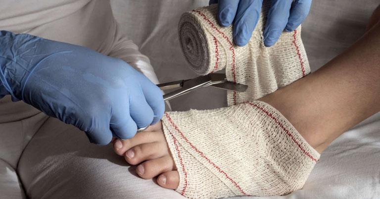 Băng nẹp cổ chân giúp bạn phòng ngừa được những tổn thương không mong muốn
