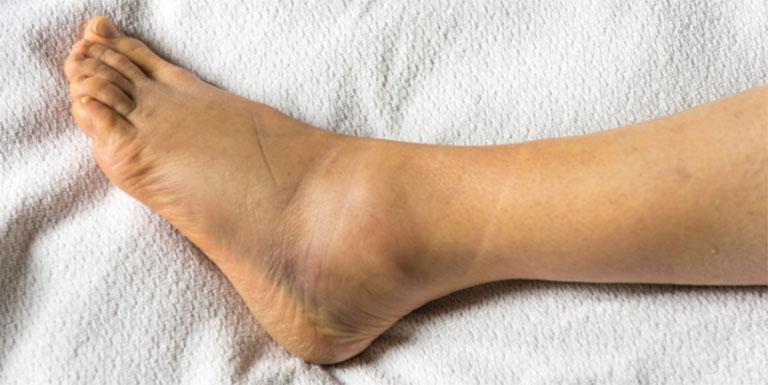 Triệu chứng của bệnh tràn dịch khớp cổ chân xảy ra do chấn thương