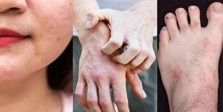 Viêm da là căn bệnh dễ tái phát và khó điều trị dứt điểm hiện nay
