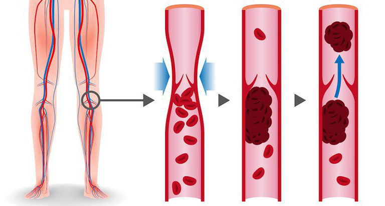 Hình thành huyết khối tĩnh mạch chân cũng là một trong những biến chứng có thể gặp ở người sau phẫu thuật cắt túi mật