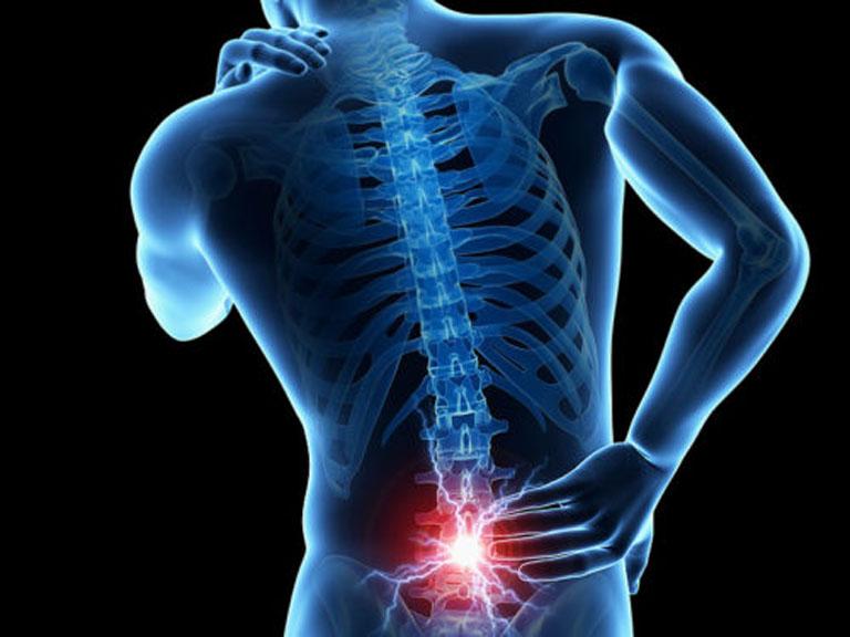 Đau bụng dưới và đau lưng có thể là dấu hiệu của một số bệnh lý về cột sống như thoái hóa, thoát vị đĩa đệm,...