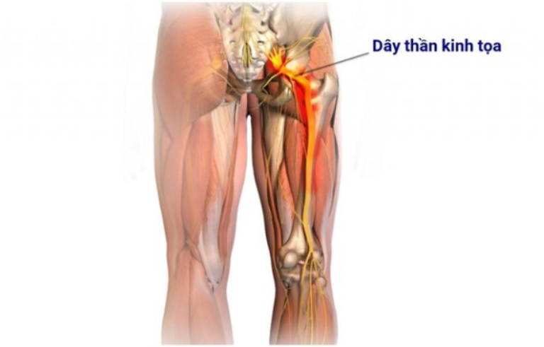 Đau dây thần kinh tọa hình thành nên các cơn đau tại vùng lưng và kéo dài đến chi dưới