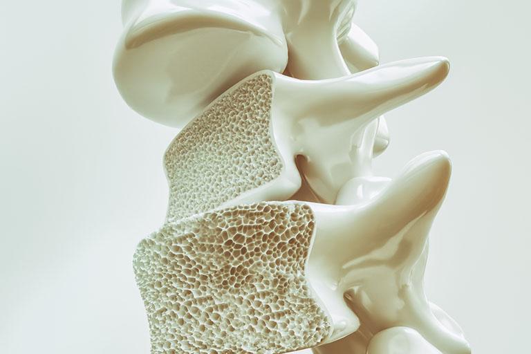 Loãng xương khiến hệ thống xương khớp trở nên yếu dần và gây đau lưng kéo dài