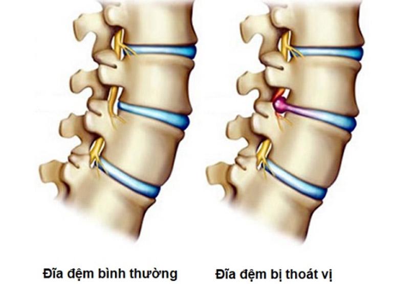 Đau lưng giữa có thể là triệu chứng của bệnh thoát vị đĩa đệm cột sống lưng