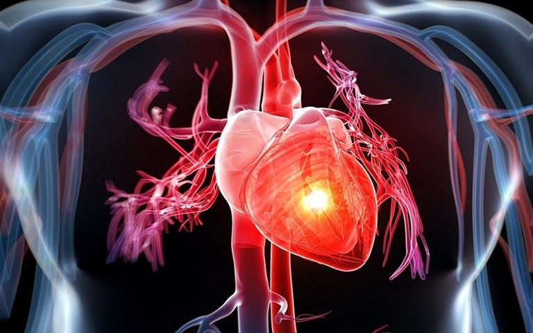 Mắc các bệnh lý tim mạch là nguyên nhân gây ra tình trạng đau nhức lưng vùng sau phổi phải trái thường gặp